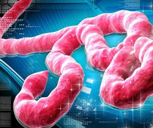 OMS suspende por precaución ensayo clínico de vacuna contra el Ébola