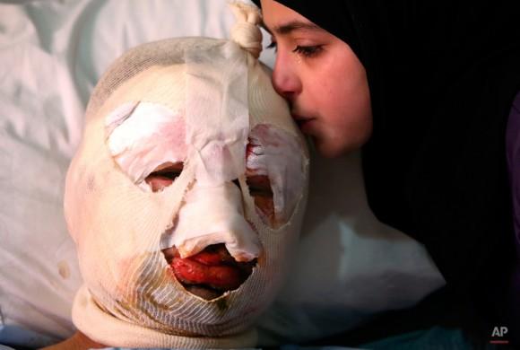 Fátima, 13, llora mientras ella besa a su padre herido, Ahmad al-Messmar, de 40 años, que resultó herido cuando un coche bomba mortal estalló cerca de una estación de servicio, en la ciudad predominantemente chií de Hermel, cerca de 10 millas (16 kilómetros) de la frontera con Siria en el noreste de Líbano, el domingo 2 de febrero de 2014. un grupo extremista suní libanés sombría atribuyó la responsabilidad por un atentado suicida con coche bomba en Hermel, un bastión del grupo militante Hezbollah del Líbano, que mató a varias personas en el último ataque vinculado a la guerra en la vecina Siria. (Foto AP / Hussein Malla)
