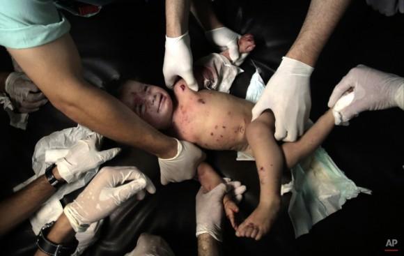 Médicos palestinos tratan a una niña herida en la sala de urgencias del hospital de Shifa, en la ciudad de Gaza, Franja de Gaza, el viernes, 18 de julio de 2014. Miles de soldados israelíes lanzaron una invasión terrestre en la Franja de Gaza, la escalada de una campaña de 10 días de pesado los bombardeos aéreos para tratar de destruir habilidades cohetes disparando Hamas y los militantes túneles utilizan para infiltrarse en Israel. (AP Photo / Khalil Hamra)