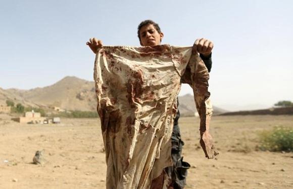 yemen bajo ataque 5