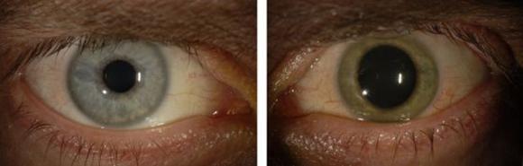 Antes de contraer el ébola, los ojos de Crozier eran azules. Después de haberse recuperado de la enfermedad, su ojo izquierdo se volvió verde. Foto: EMORY EYE CENTER