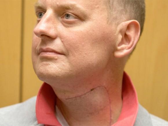 El paciente, identificado únicamente como Michal, sufría de un cáncer avanzado en la laringe, lo que le imposibilitaba respirar, tragar o hablar.