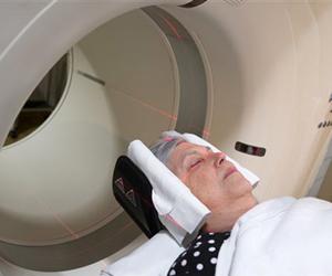 Estudian cerebros sanos en busca de una cura para el Mal de Alzheimer