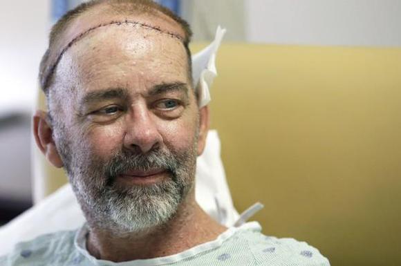 Realizan en EE.UU. primer trasplante parcial de cráneo y cuero cabelludo