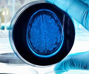 cerebro-laboratorio