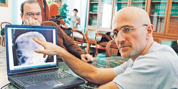 Investigador italiano Sergio Canavero.