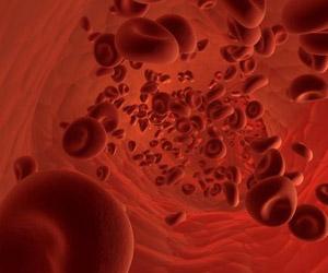 Equipo estadounidense creó un implante con una red de vasos sanguíneos usando azúcar, silicona y una impresora 3D.
