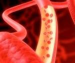 vaso sanguineo