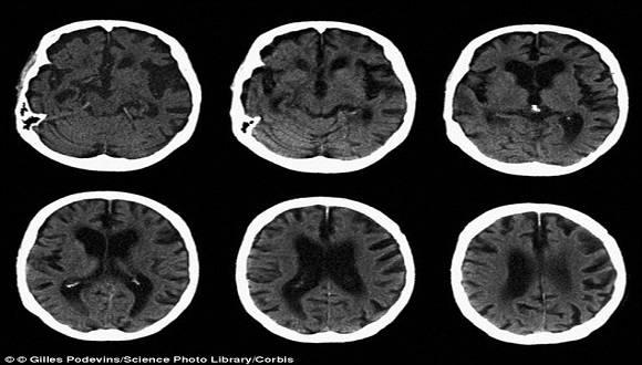 La enfermedad de Alzheimer se manifiesta cuando se forman ovillos neurofibrilares,o sea, un conglomerado anormal de una proteína llamada tau que forma nudos en el cerebro. Foto Library Corbis.