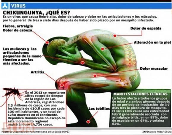 síntomas Chikungunya