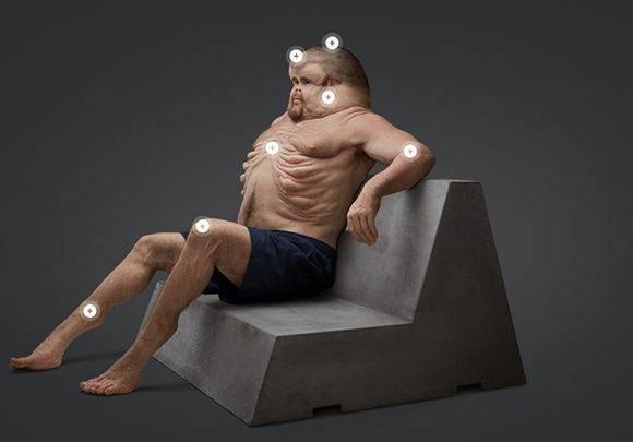 Su cuerpo deforme le permitiría sobrevivir a los accidentes de tránsito. Foto: Comisión de Accidentes de Transporte de Australia.