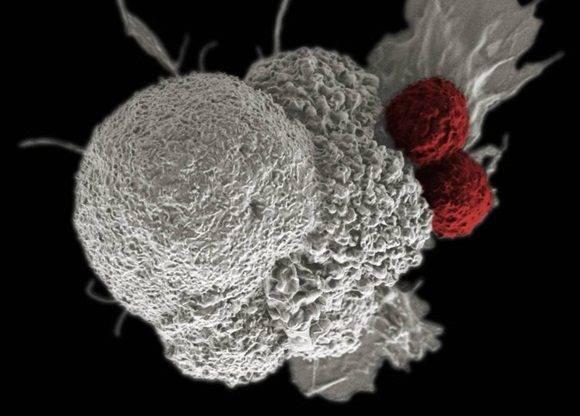 Célula de un cáncer de cabeza y cuello, atacada por dos glóbulos blancos
