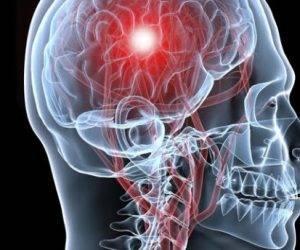 cerebro isquemia