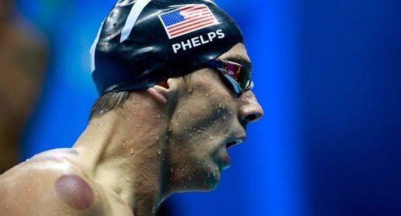 ¿Por qué el cuerpo de Michael Phelps está lleno de manchas?
