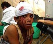 yemen33