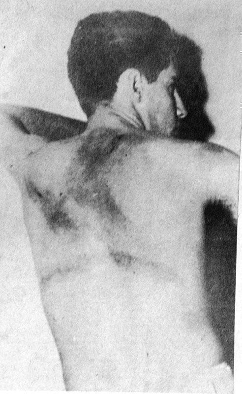 Los verdugos de la dictadura se ensañaron con la espalda de Gayol.