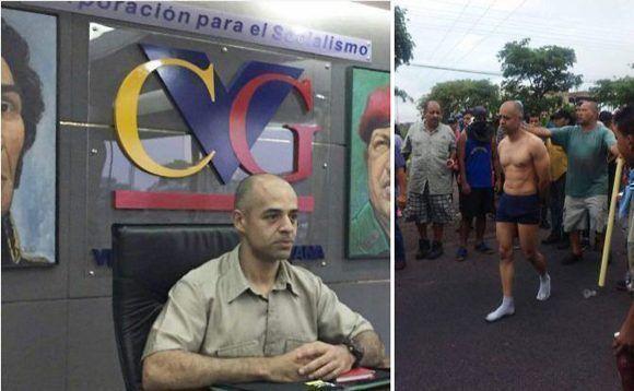 Luis Mejías, trabajador de Ferrominera, torturado y golpeado por la oposición. Foto: AlbaCiudad.
