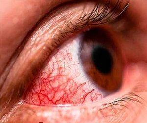 Conjuntivitis hemorrágica.