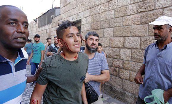 Un palestino herido es visto después de que las fuerzas israelíes intervinieron una protesta en frente del complejo Al-Aqsa en Jerusalén el 16 de julio de 2017. Foto: Mostafa Alkharouf/ Anadolu Agency.