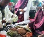 En Turkana Sur, un 12 por ciento de los niños menores de cinco años sufren malnutrición severa, una cifra nunca vista en esta comunidad. Fuente: Reuters.