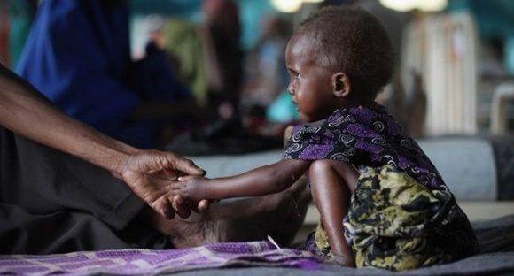 Las organizaciones de ayuda humanitaria advierten el riesgo de que a las muertes por hambre se sumen a otras por enfermedades relacionadas con la falta de agua.