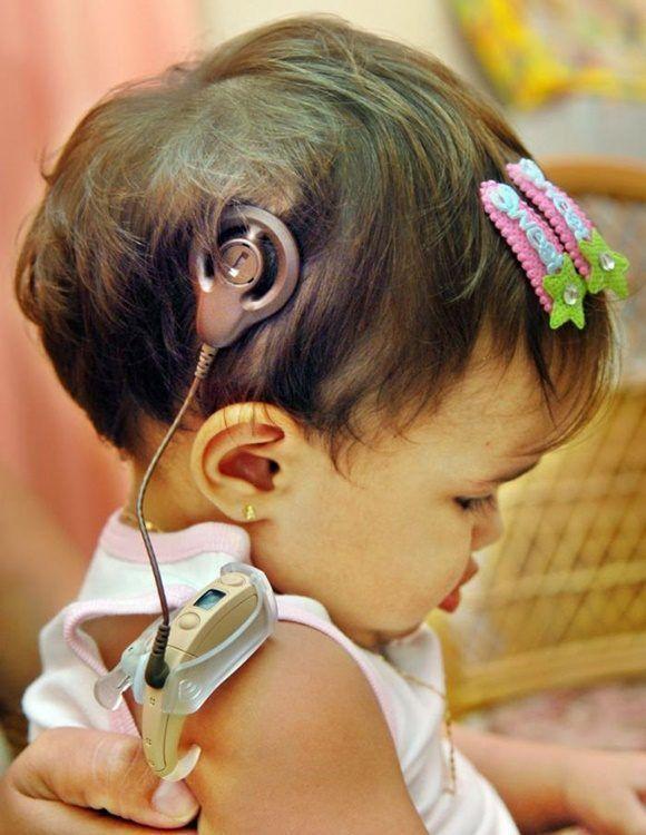 Implantes cocleares: El sorprendente sonido del amor (+ Video)