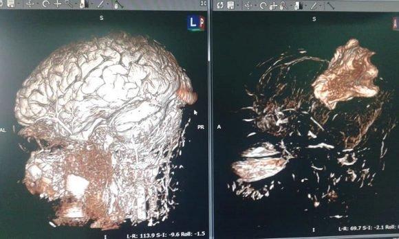Cuba: primera cirugía de mapeo cerebral del lenguaje con paciente despierto