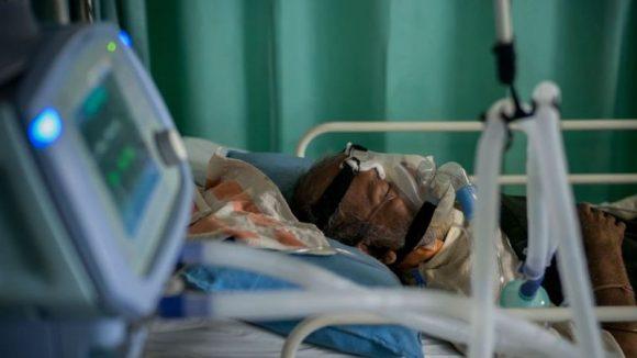 paciente grave covid